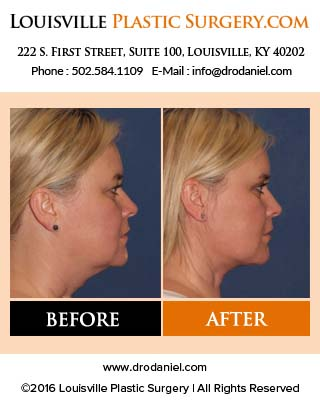 Facelift facts part 4 – frequently asked questions