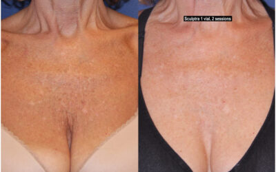 Are you self-Conscious about wearing halter tops, swimsuits, or low-Cut blouses due to chest wrinkles?